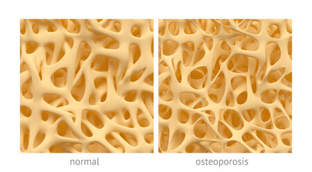Osteoporosis, What We're Talking About This Week!